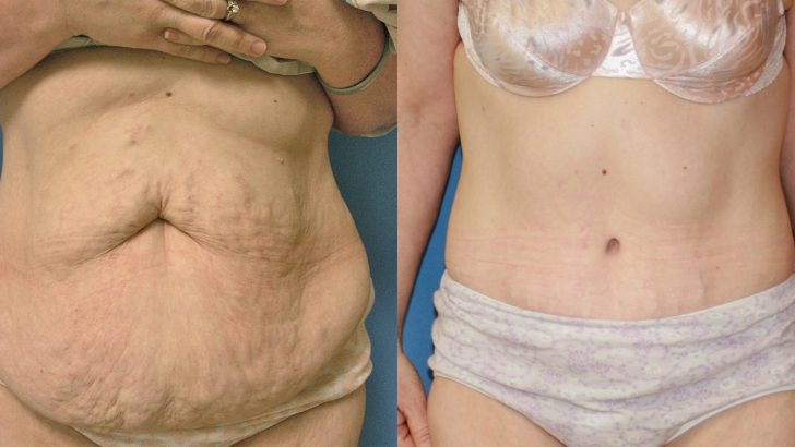 Obezite Cerrahisi mi Normal Diyet mi?
