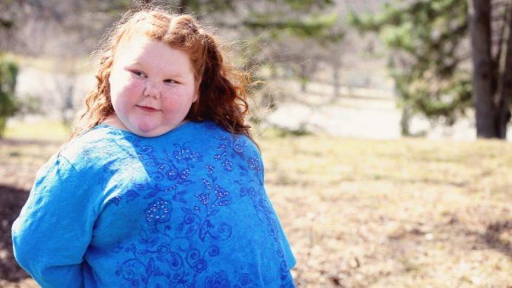 Kardiyovasküler Sistem Hastalıkları ve Obezite