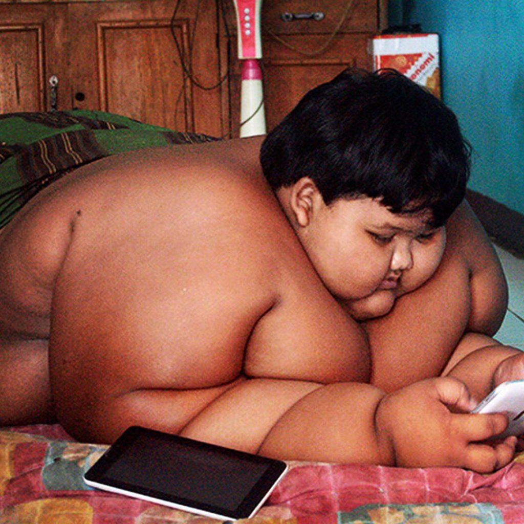 Süper obez çocuk