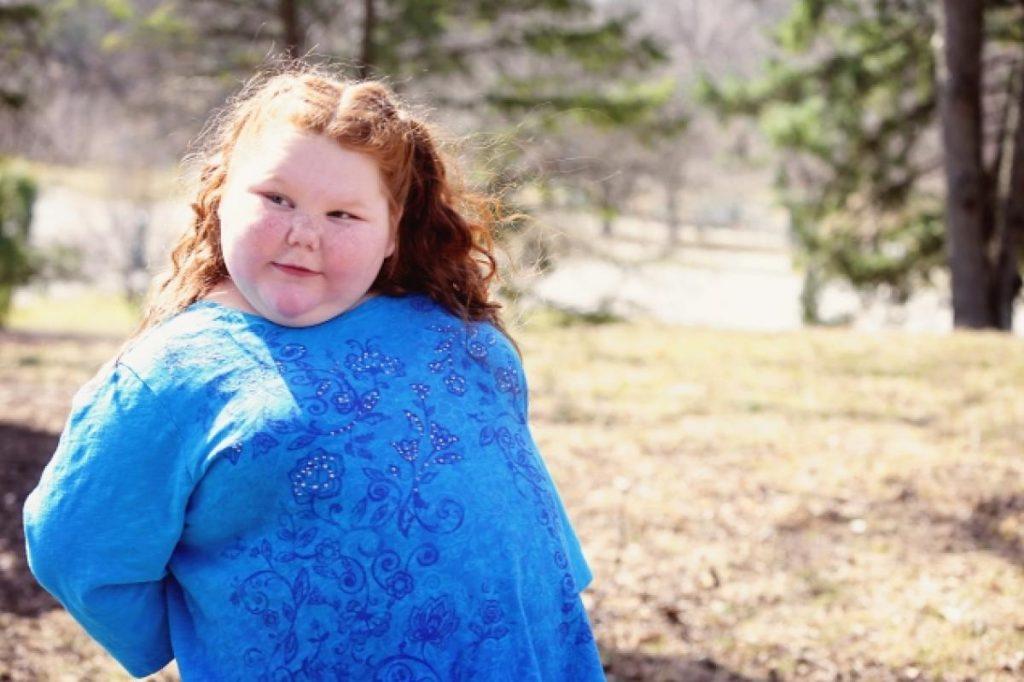 Obez küçük kız