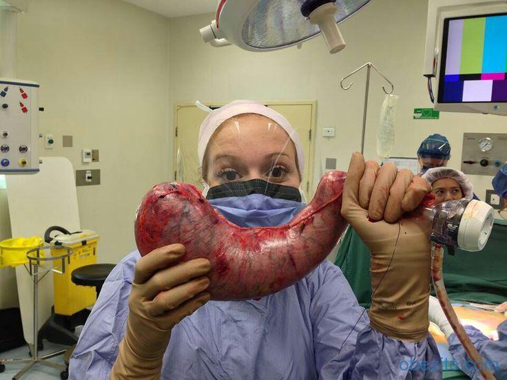 Obezite cerrahisi ile midenin çıkartılan kısmı
