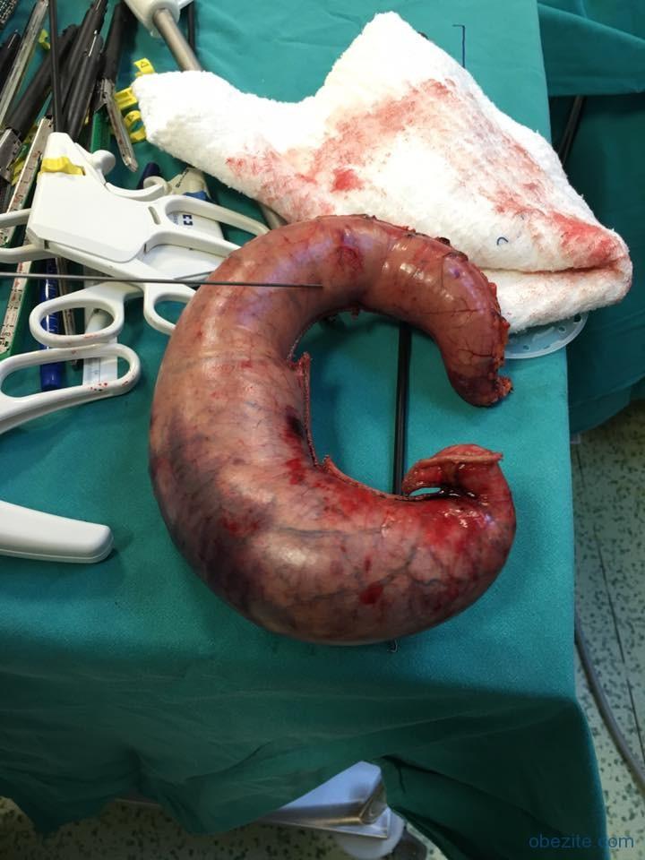 Obezite ameliyatı tüp mide